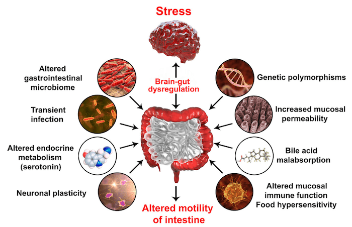 diagram showing stress causing brain gut dysregulation and altered motility of intestine