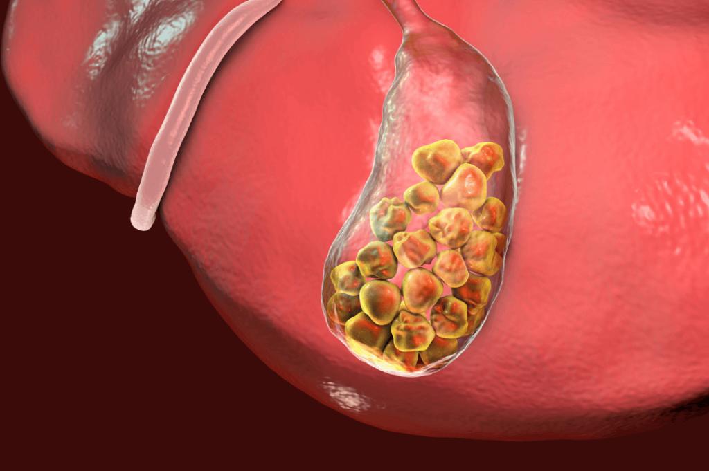 gallstones inside gallbladder