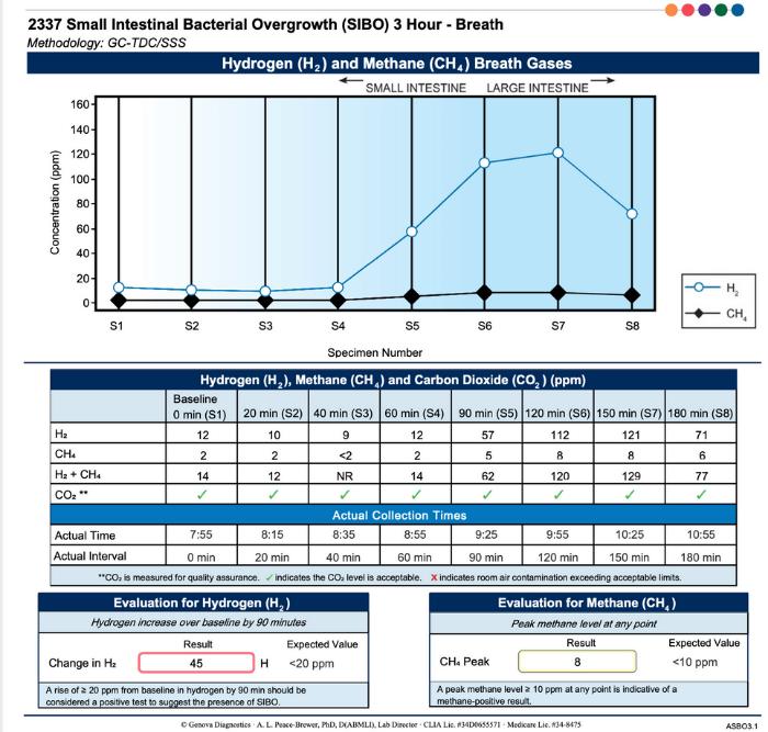 sibo breath test sample report