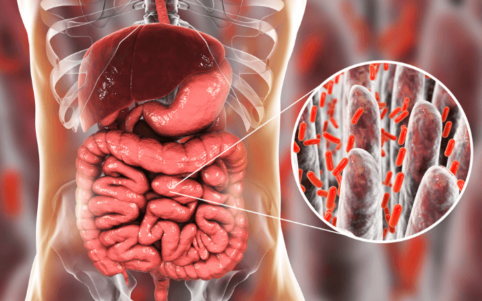 small intestinal bacterial overgrowth