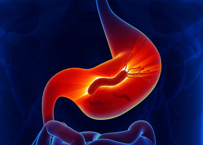 H. pylori infection in the stomach glowing red on dark blue background